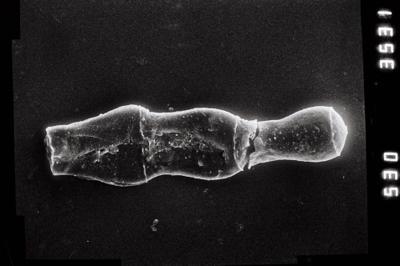 <i><i>Linochitina erratica</i> | Linochitina cf. erratica</i><br />Ventspils D-3 borehole, 663.00 m, Rootsiküla Stage ( 754-800)