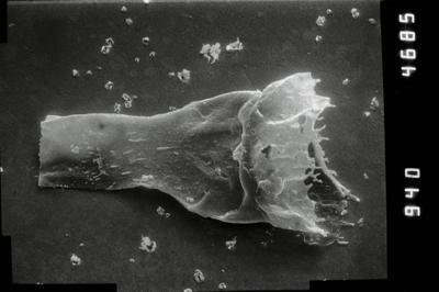 <i><i>Anthochitina primula</i></i><br />Viki borehole, 140.10 m, Adavere Stage ( 754-1116)