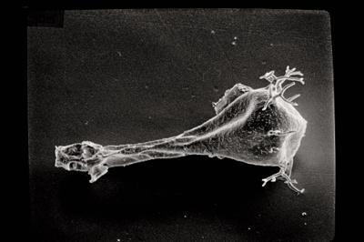 <i><i>Ancyrochitina</i> | Ancyrochitina sp. n.</i><br />Ruhnu 500 borehole, 536.00 m, Raikküla Stage ( 754-491)