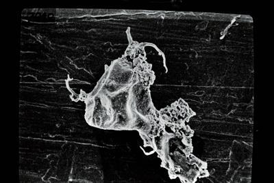 <i><i>Ancyrochitina</i>   Ancyrochitina sp. sp.</i><br />Ruhnu 500 borehole, 361.90 m, Jaagarahu Stage ( 754-689)