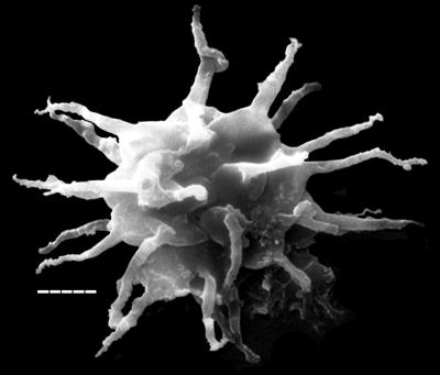 Stellechinatum uncinatum (Downie, 1958) Molyneux, 1987, TUG 1538-12