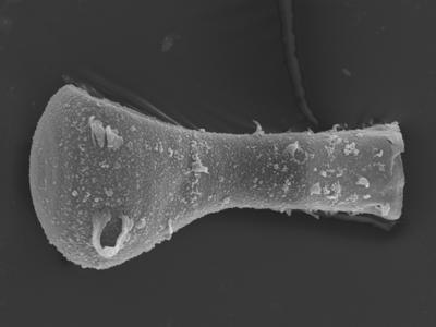 <i><i>Plectochitina</i>   Plectochitina sp.</i><br />Ohesaare borehole, 143.15 m, Rootsiküla Stage ( 754-375)