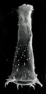 <i><i>Spinachitina cervicornis</i></i><br />Rapla borehole, 137.50 m, Keila Stage ( 190-13)