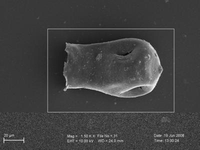 <i><i>Linochitina</i>   Linochitina sp.</i><br />Pavilosta 51 borehole, 736.00 m,  ( 754-278)
