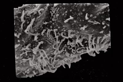 <i><i>Ramochitina</i> | Ramochitina? sp. (H)</i><br />Ruhnu 500 borehole, 463.20 m, Adavere Stage ( 754-796)