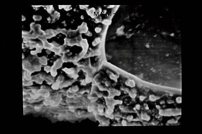 <i><i>Conochitina</i> | Conochitina sp.</i><br />Ruhnu 500 borehole, 344.50 m, Jaagarahu Stage ( 754-667)