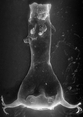 <i><i>Ancyrochitina</i> | Ancyrochitina aff. ancyrea (Eisenack, 1931)</i><br />Ruhnu 500 borehole, 473.20 m, Adavere Stage ( 272-37)