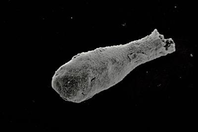 <i><i>Angochitina elongata</i> | Angochitina cf. elongata</i><br />Kaugatuma 509 borehole, 76.20 m, Paadla Stage ( 754-752)