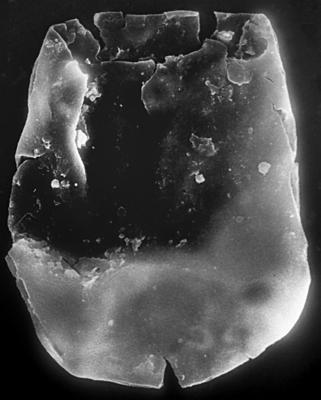 <i><i>Chitinozoa</i>   Eisenackitina? sp. 3 Nestor, 1994</i><br />Häädemeeste 172 borehole, 311.23 m, Raikküla Stage ( 272-176)