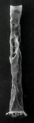 <i><i>Baltochitina nolvaki</i></i><br />Rapla borehole, 179.20 m, Lasnamägi Stage ( 190-19)