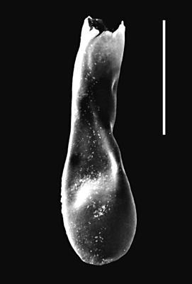 <i><i>Lagenochitina dalbyensis</i></i><br />Piilsi 729 borehole, 117.40 m, Haljala Stage ( 664-4)