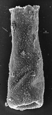 <i><i>Belonechitina postrobusta</i></i><br />Aispute 41 borehole, 977.95 m, lower Silurian ( 345-1)