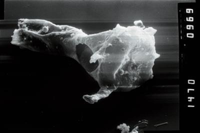 <i><i>Plectochitina</i>   Plectochitina cf. nodifera</i><br />Viki borehole, 238.90 m, Juuru Stage ( 754-1043)