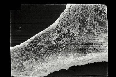 <i><i>Sphaerochitina</i> | Sphaerochitina sp.</i><br />Ruhnu 500 borehole, 457.45 m, Jaani Stage ( 754-496)