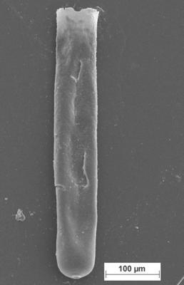 <i><i>Rhabdochitina</i> | Rhabdochitina sp.</i><br />Staicele 4 borehole, 394.50 m, Raikküla Stage ( 754-1362)
