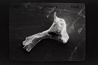 <i><i>Ancyrochitina primitiva</i></i><br />Ruhnu 500 borehole, 347.40 m, Jaagarahu Stage ( 754-553)