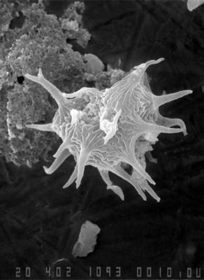 Cheleutochroa venosa Uutela et Tynni, 1991, GIT 344-77