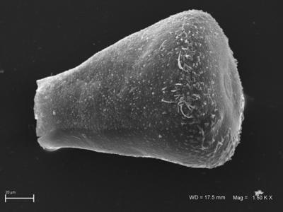<i><i>Eisenackitina</i> | Eisenackitina sp.</i><br />Ohesaare borehole, 35.70 m, Kaugatuma Stage ( 754-1823)