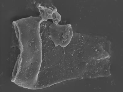 <i><i>Cingulochitina gorstyensis</i></i><br />Ohesaare borehole, 136.00 m, Rootsiküla Stage ( 754-353)