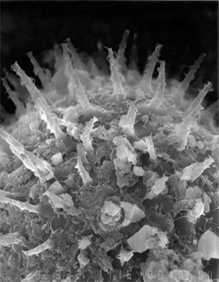 Baltisphaeridium cirsinum Uutela et Tynni, 1991, GIT 344-30