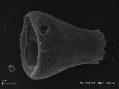 <i><i>Eisenackitina</i> | Eisenackitina sp.</i><br />Ohesaare borehole, 35.70 m, Kaugatuma Stage ( 754-1824)
