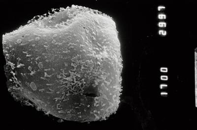 <i><i>Eisenackitina</i> | Eisenackitina sp. 1</i><br />Pulli 2 borehole, 47.65 m, Adavere Stage ( 754-891)