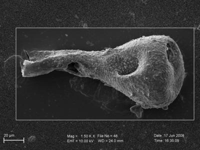 <i><i>Sphaerochitina</i> | Sphaerochitina sp.</i><br />Pavilosta 51 borehole, 792.10 m, Paadla Stage ( 754-253)