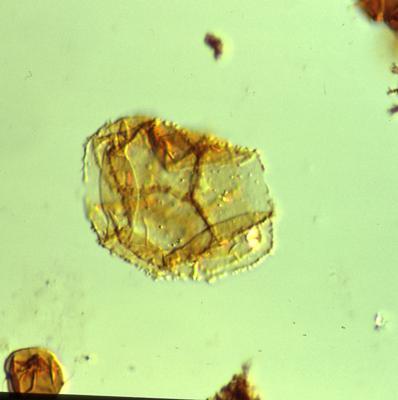 Cristallinium randomense (Martin, 1981) Martin, 1988, TUG 1520-16