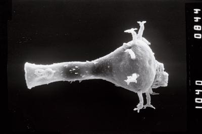 <i><i>Ancyrochitina</i> | Ancyrochitina cf. ancyrea</i><br />Vängla trench,  m, Adavere Stage ( 754-1914)