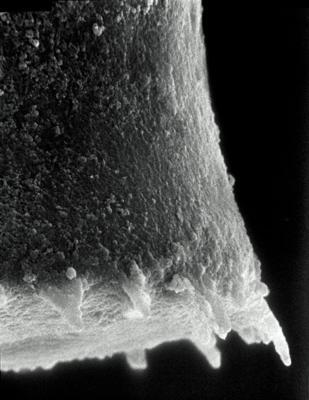 <i><i>Spinachitina coronata</i> | Coronochitina coronata Eisenack, 1931</i><br />Rapla borehole, 49.00 m, Pirgu Stage ( 190-5)