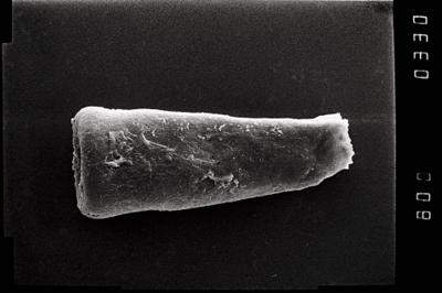 <i><i>Conochitina</i>   Conochitina cf. linearistriata</i><br />Ohesaare borehole, 198.80 m, Jaagarahu Stage ( 754-1074)
