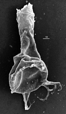 <i><i>Chitinozoa</i> | Ancyrochitina aff. ancyrea (Eisenack, 1931)</i><br />Aispute 41 borehole, 946.55 m, lower Silurian ( 345-26)