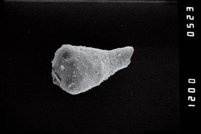 <i><i>Sphaerochitina indecora</i></i><br />Ohesaare borehole, 161.20 m, Jaagarahu Stage ( 754-1211)