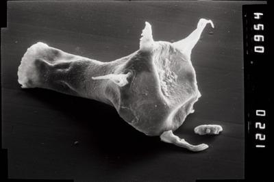 <i><i>Plectochitina</i> | Plectochitina cf. pachyderma</i><br />Varbla 502 borehole, 120.10 m, Jaani Stage ( 754-1033)