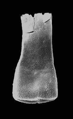 <i><i>Eisenackitina clunensis</i></i><br />Pavilosta 51 borehole, 779.00 m, Gorstian ( 576-26)