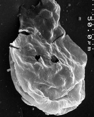 <i><i>Chitinozoa</i></i><br />,  m,  ( 1534-11)