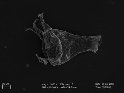 <i><i>Ancyrochitina fragilis</i> | Ancyrochitina cf. fragilis</i><br />Pavilosta 51 borehole, 684.30 m, Kuressaare Stage ( 754-231)