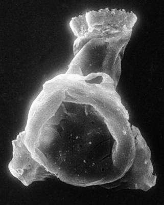 <i><i>Chitinozoa</i> | Clathrochitina cf. clathrata Eisenack, 1959</i><br />Jaagarahu borehole, 59.60 m, Adavere Stage ( 273-11)
