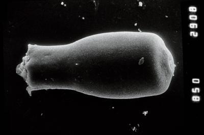 <i><i>Conochitina emmastensis</i></i><br />Nagli 106 borehole, 627.00 m, Adavere Stage ( 754-863)