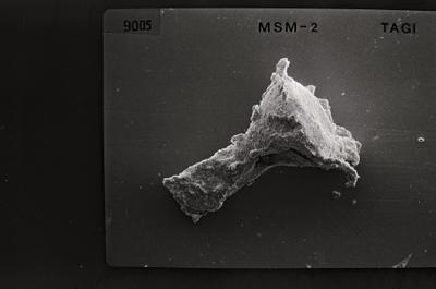 <i><i>Ancyrochitina tomentosa</i> | Ancyrochitina cf. tomentosa</i><br />Ruhnu 500 borehole, 404.20 m, Jaagarahu Stage ( 754-558)