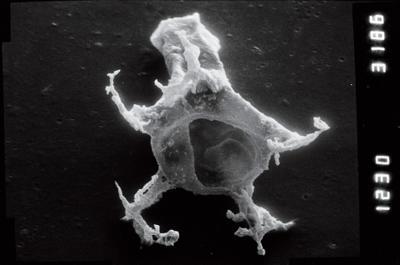 <i><i>Plectochitina</i> | Plectochitina cf. spongiosa</i><br />Viki borehole, 226.40 m, Juuru Stage ( 754-942)