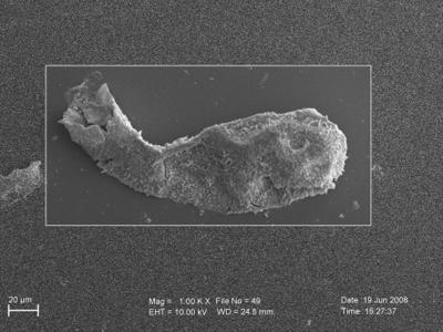 <i><i>Angochitina elongata</i> | Angochitina aff. elongata</i><br />Ohesaare borehole, 117.50 m, Paadla Stage ( 754-263)