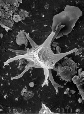Cheleutochroa venosior Uutela et Tynni, 1991, GIT 344-78