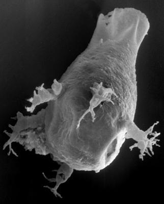 <i><i>Ancyrochitina</i> | Ancyrochitina aff. sp. A Nestor, 1984</i><br />Vängla trench,  m, Adavere Stage ( 223-19)