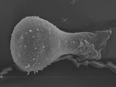<i><i>Sphaerochitina lycoperdoides</i></i><br />Ohesaare borehole, 152.90 m, Rootsiküla Stage ( 754-348)