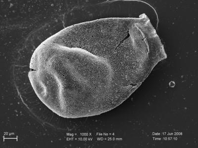 <i><i>Eisenackitina oviformis</i> | Eisenackitina oviformis?</i><br />Pavilosta 51 borehole, 705.00 m, Kuressaare Stage ( 754-221)