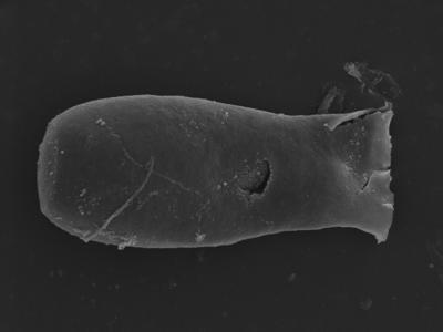 <i><i>Linochitina</i>   Linochitina? sp.</i><br />Kolka 54 borehole, 473.80 m, Jaagarahu Stage ( 754-1257)