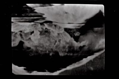 <i><i>Ancyrochitina brevispinosa</i> | Ancyrochitina cf. brevispinosa</i><br />Ohesaare borehole, 81.20 m, Kuressaare Stage ( 754-587)