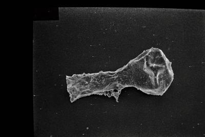<i><i>Ancyrochitina primitiva</i></i><br />Ruhnu 500 borehole, 395.80 m, Jaagarahu Stage ( 754-129)