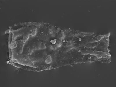 <i><i>Cingulochitina cingulata</i></i><br />Kolka 54 borehole, 530.00 m, Jaagarahu Stage ( 754-436)